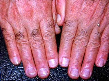 tratamiento-caida-cabello-manos